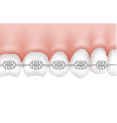 teeth with metal braces vector image
