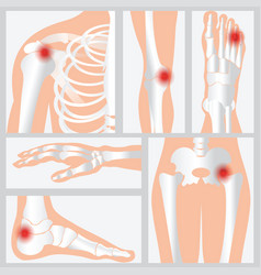 disease of the joints and bones vector image