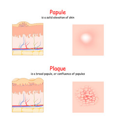 Skin lesion papule and plaque side and top view vector