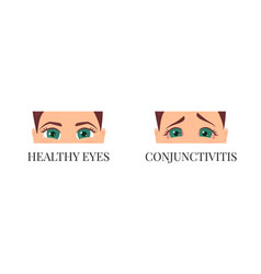 woman with conjunctivitis vector image