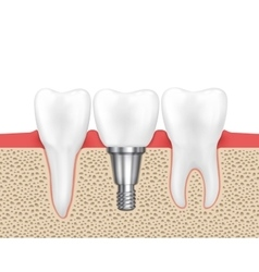 Dental human implant vector image