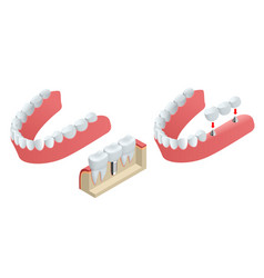 isometric tooth human implant dental concept vector image