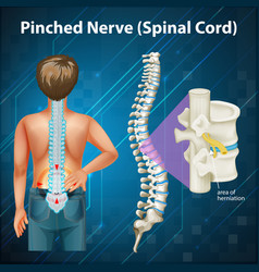 Diagram showing spinal cord vector