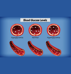 Medical blood glucose level vector