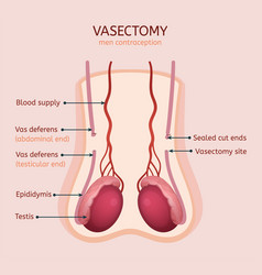 man vasectomy image vector image
