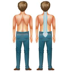 Man showing spinal cord injury vector