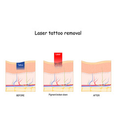 Laser tattoo removal vector