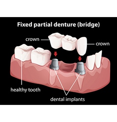 A fixed partial denture vector
