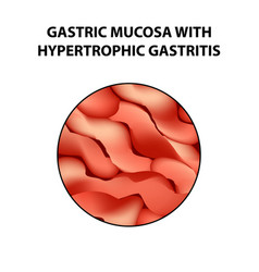 Gastric mucosa with hypertrophic gastritis vector