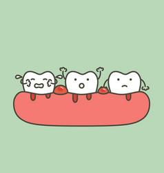 Periodontitis or gum disease with bleeding vector