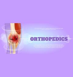 Realistic orthopedics medicine in 3d vector