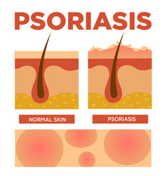 Psoriasis and normal skin layers detailed vector