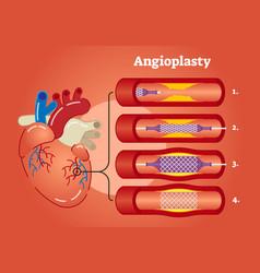 angioplasty vector image