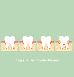 step of periodontal disease vector image