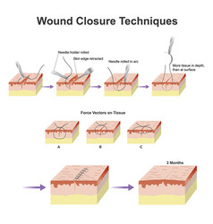 wound closure techniques vector image