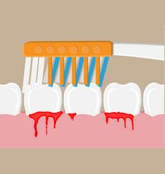 periodontal disease bleeding gums vector image