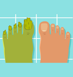 Ugly toes with a fungus foot vector