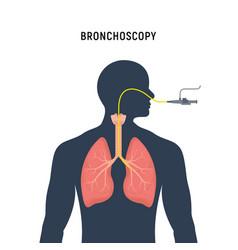 bronchoscopy respiratory system emphysema vector image