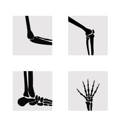 Medical orthopedic set vector