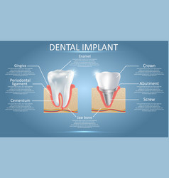 Human tooth and dental implant educational vector