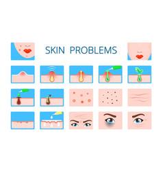 Skin problem hygiene infographic damaged vector