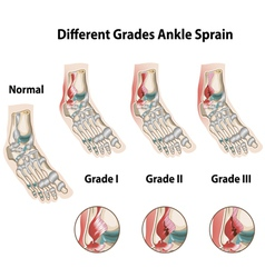 Different grades ankle sprains vector