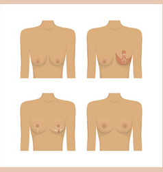 Lifting breast plastic surgery vector