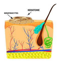 The structure of keratoma keratosis the vector