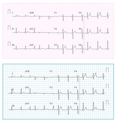 heart cardiogram chart set healthy heart vector image