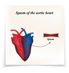 Spasm of the arteries of the heart Infographics vector image