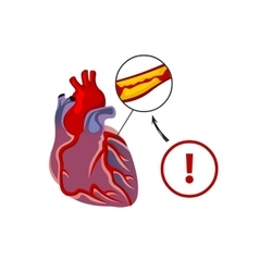 The risk of heart failure vector image