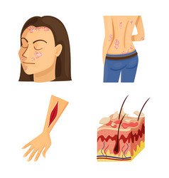 Isolated object pain and dermatology sign set vector
