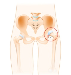 Dislocation of hip vector image