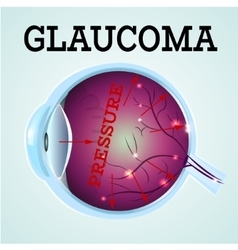 Healthy Eye Glaucoma vector