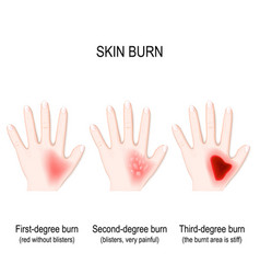 Degree burns of skin step of burn vector