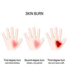 Degree burns skin step burn vector