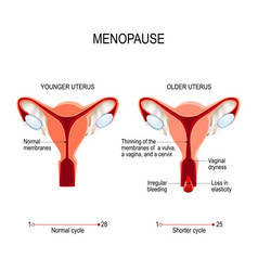 Menopause or climacteric younger and older women vector