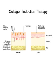Collagen induction therapy microneedling vector