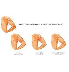 Humerus fracture trauma surgery vector