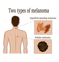 Two types of melanoma vector image