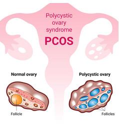 Polycystic ovary syndrome pcos hormonal diagnose vector