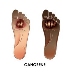 Diabetic foot gangrene ulcers skin sores on vector