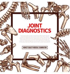 poster for joint medical diagnostics vector image vector image