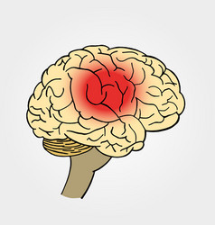 Brain in headache place of pain in vector
