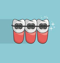 Dental brace healthcare vector