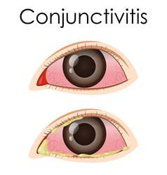 diagram showing conjunctivitis in human vector image