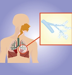 Respiratory system Bronchi increased vector