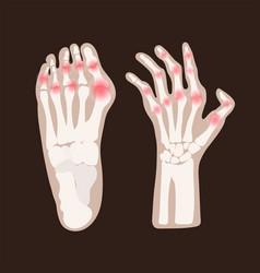 Hand leg arthritis rheumatoid medicine education v vector