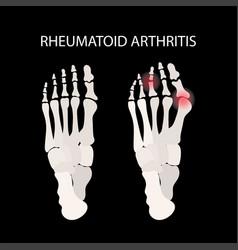 Rheumatoid arthritis leg medicine education vector