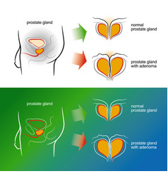 sketch of a male prostate gland with adenoma vector image